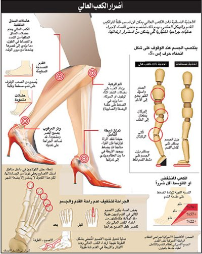 035554477 علاء السيد.. الكعب العالي يذهب بعقول النساء!